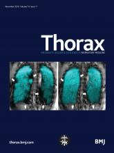 thorax11.cover-source